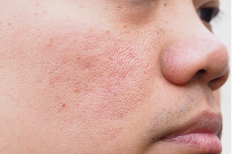 acne scar type fractional laser