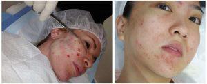 Don't underestimate bruising