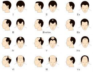 Men hair loss progression