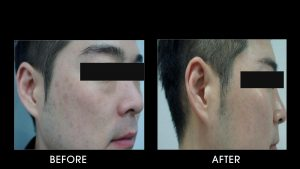 Pico Laser Before After 4