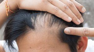 Young man hair loss example