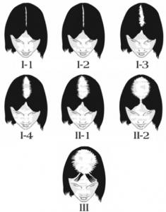 Female Hair Loss progress graph