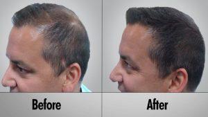 men natural hair restoration