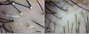 meso scalp before after1