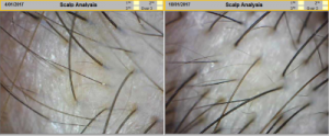 meso hair loss treatment before after2