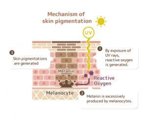 skin pigmentation pico laser