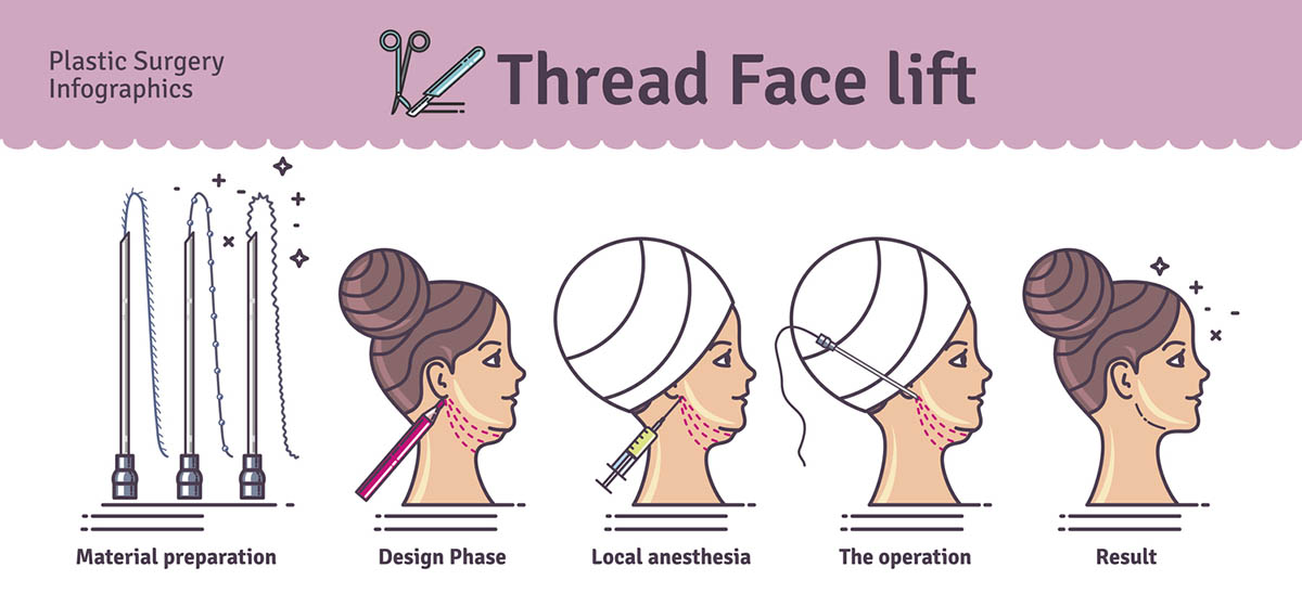 thread face lift illustration