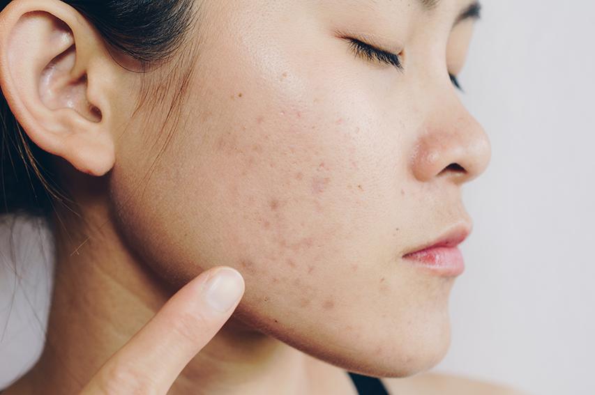 acne singapore