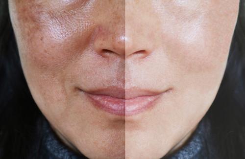 melasma-before-after-2