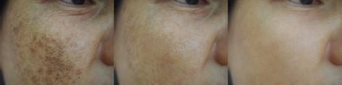 melasma-before-after