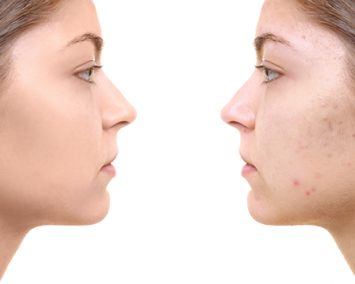 acne-scars-singapore-before-after