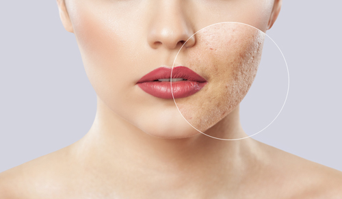 acne-scar-singapore