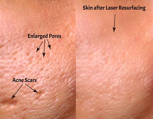 laser-skin-resurfacing-results