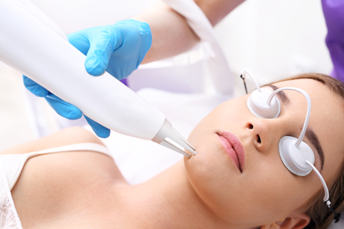 laser-treatment-for-acne-scars