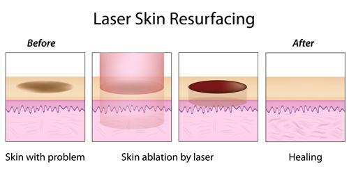 laser treatment acne scars singapore