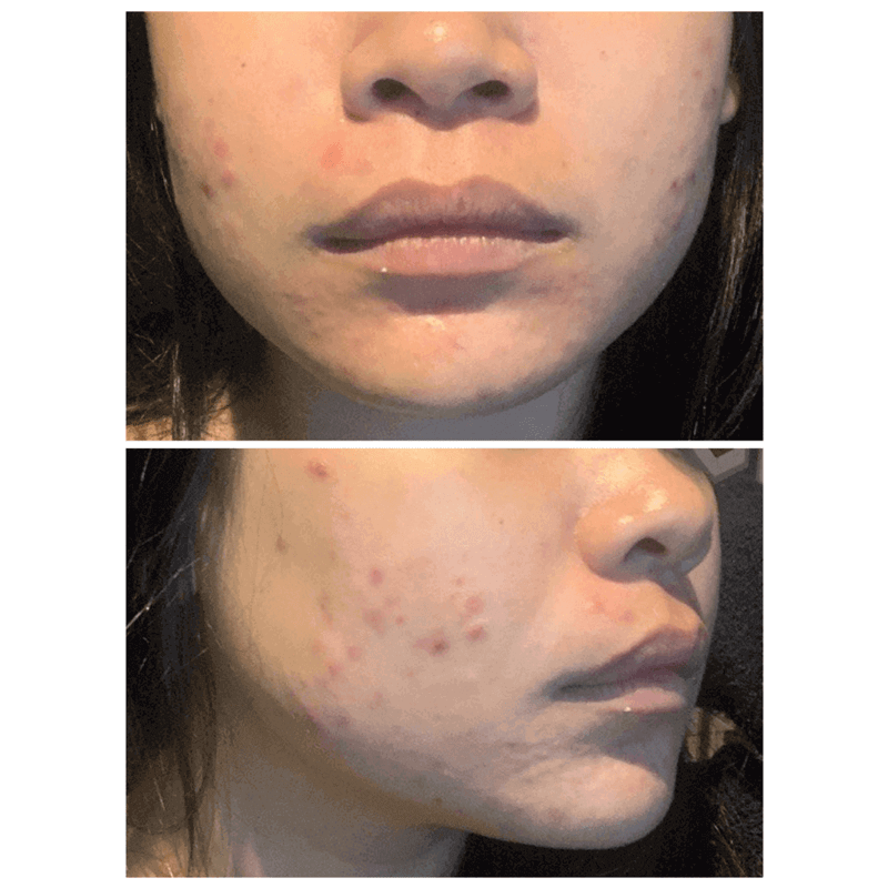 acne on skin of patient prior to acne treatments