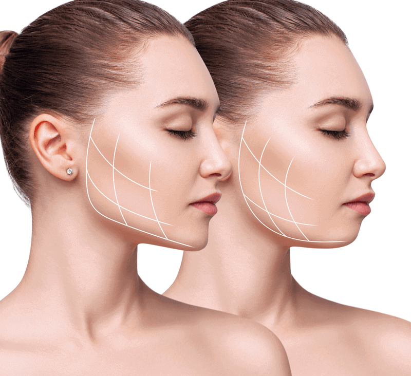 face fillers vs facelifts in singapore