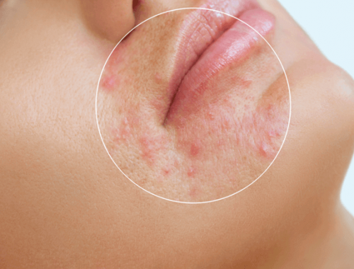 acne treatments in singapore which are effective
