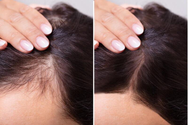 slow down hair loss