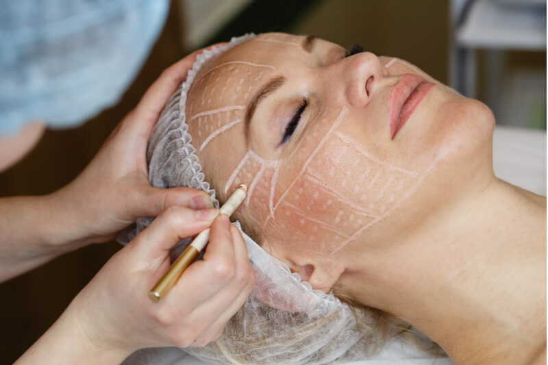 difference between surgical and non-surgical facelifts