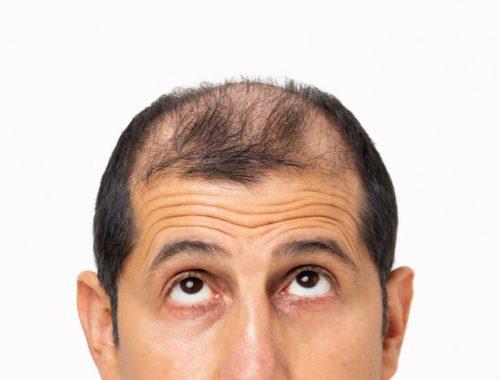 hair loss treatment singapore cost