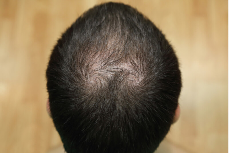signs of hair loss male pattern baldness