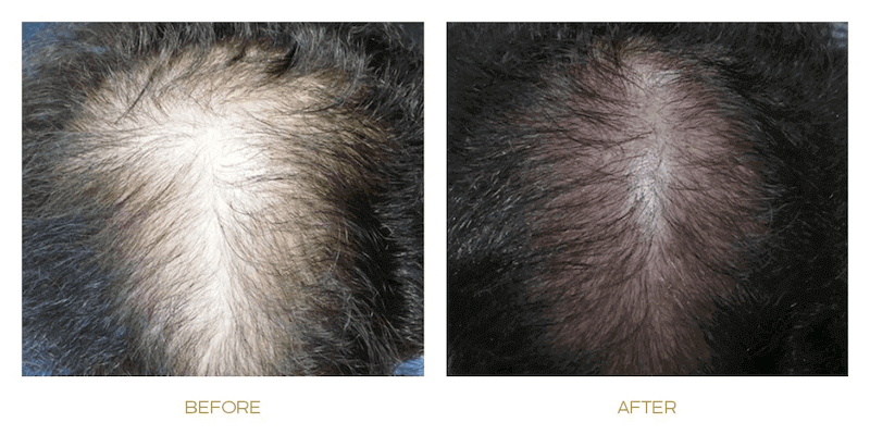 RF RegenULTRA Before and After