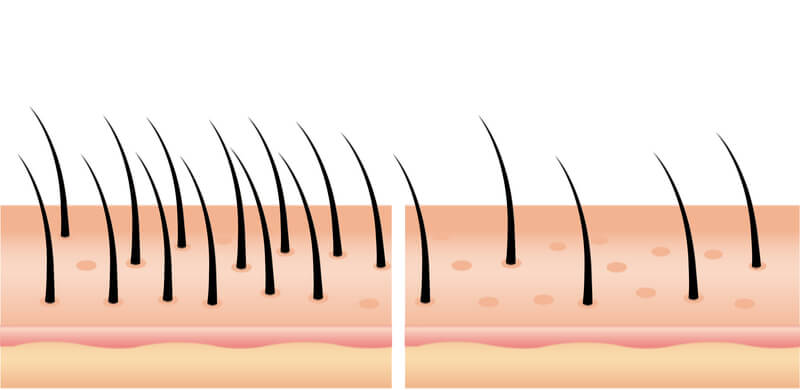 hair loss thinning problems