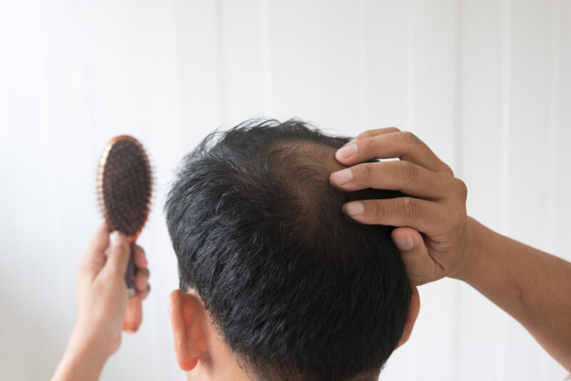 men hair thinning problems